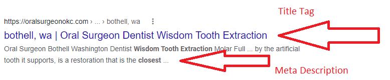 Title Tag and Meta description for dental clinics